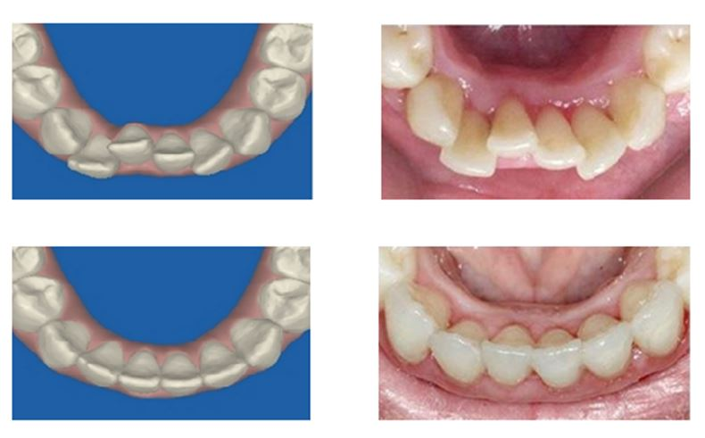 משמאל - ההדמיה הממוחשבת, מימין – השיניים במציאות משמאל - ההדמיה הממוחשבת, מימין – השיניים במציאות. למעלה – לפני הטיפול, למטה- אחריו