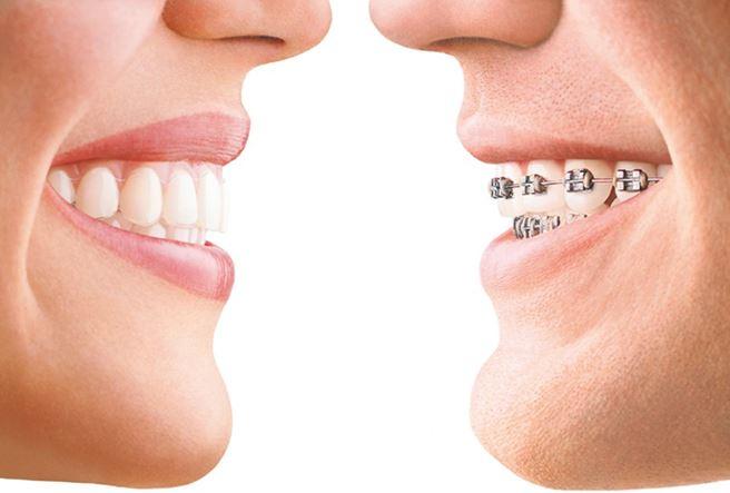 """מימין- שיניים עם """"גשר"""" מסורתי. משמאל – שיניים עם קשתית שקופה"""