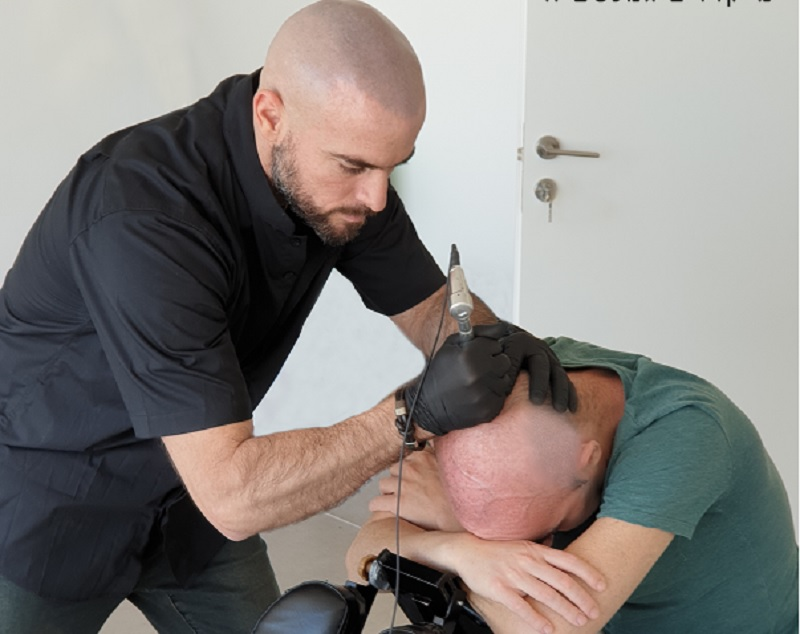 טיפול הדמית שיער קליניקה סקאלפ. הפתרון הלא כירורגי האולטימטיבי. צילום עצמי