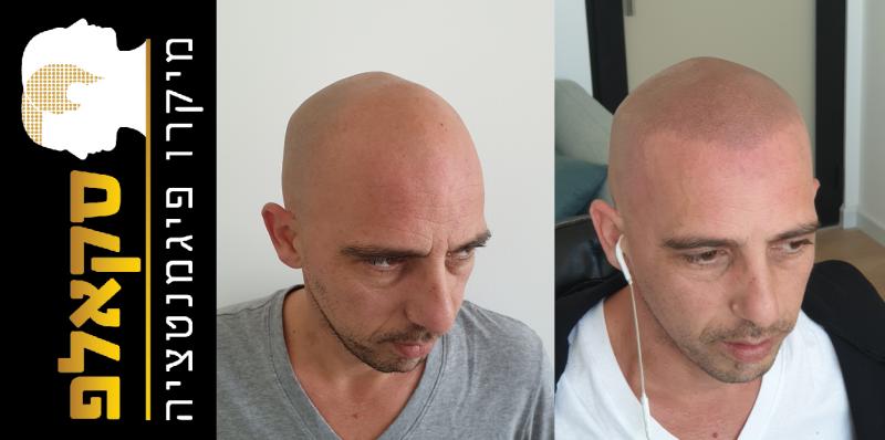 לפני ואחרי. תמונה באדיבות הלקוח