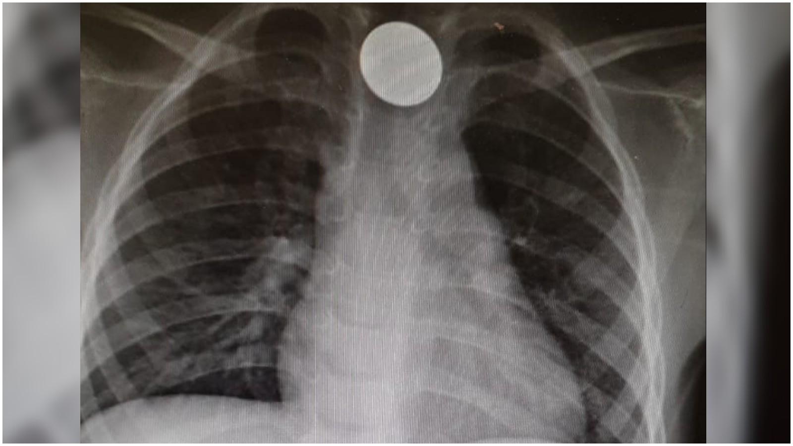 צילום רנטגן של אחד הילדים ששאף מטבע וטופל בבית החולים מאיר. צילום באדיבות בית החולים